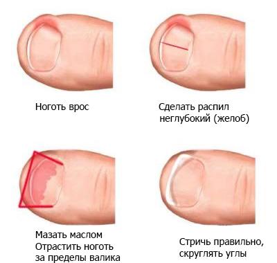 Терапия при вросшем ногте
