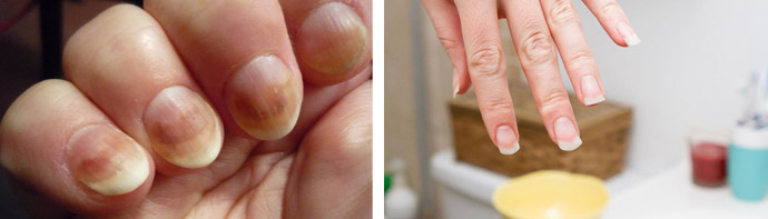 Терапия при грибке на руках