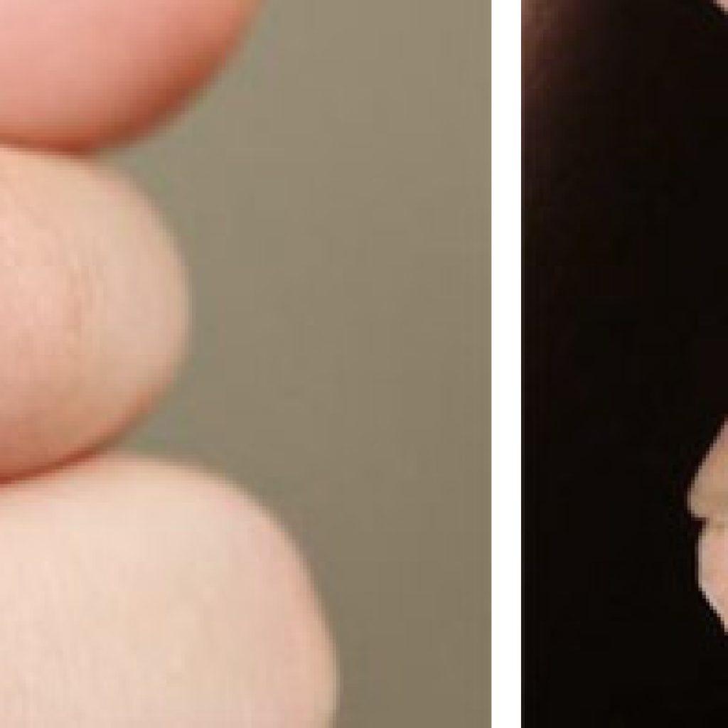 Трещины на коже