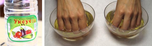 Грибок ногтей лечение уксусом в домашних условиях