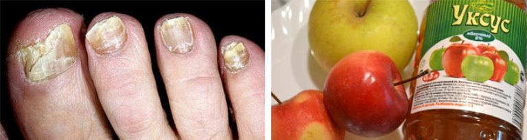 От грибка ногтей рецепт уксус с яйцом