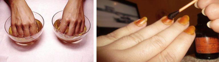 Что делать чтоб ногти не слоились
