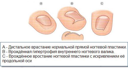Формы врастания ногтевых пластин