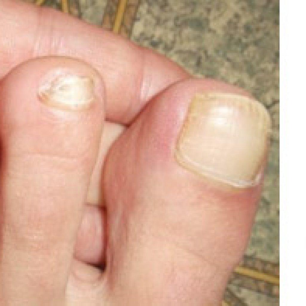 Фото грибка ногтевых пластин
