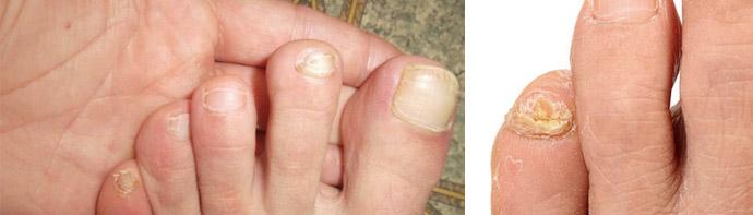 Фото грибка ногтевых пластин на начальных стадиях