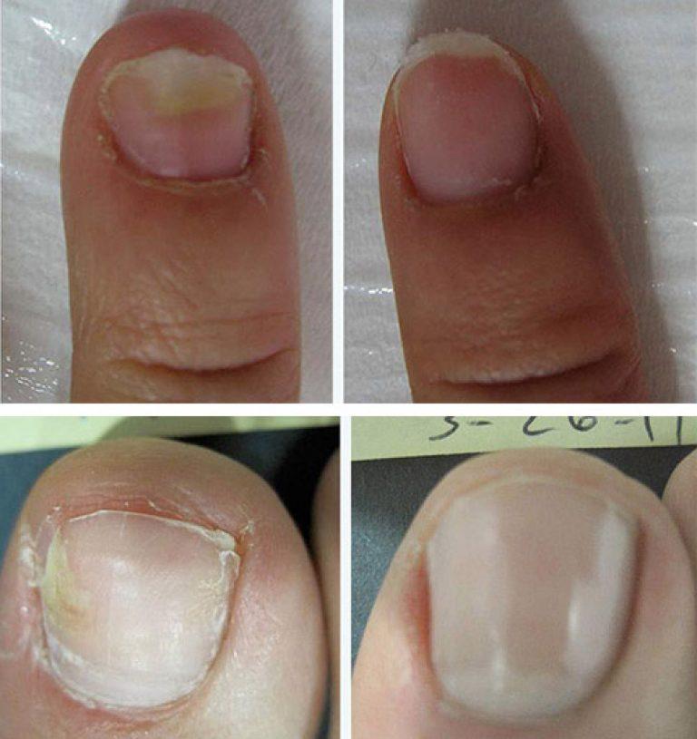 Лечение грибка на ногтях ног медикаментами