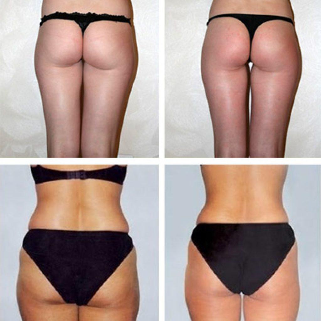 Фото до и после обертываний