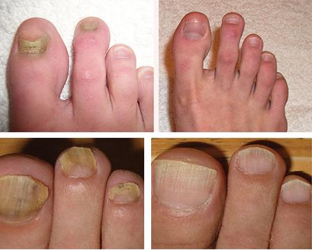 Все о лечение грибка ногтей лазером: цена, видео и отзывы
