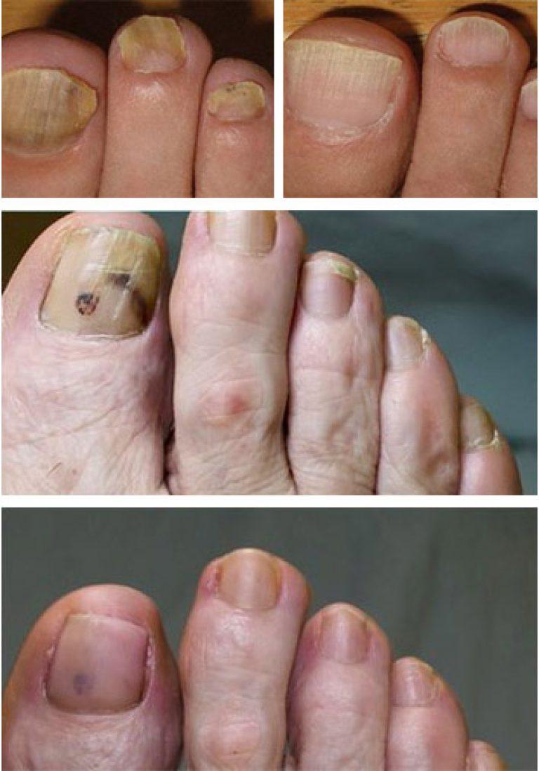 Лечит ли нитрофунгин грибок ногтей на ногах