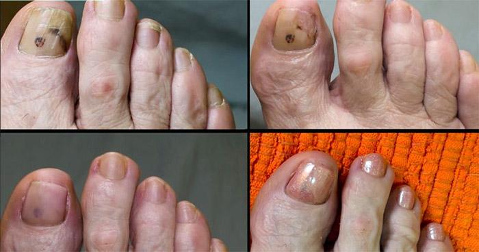 Фото после лечения ногтей Суперчистотелом