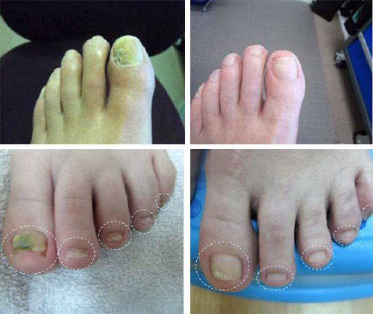 Самое эффективное лак от грибка на ногтях