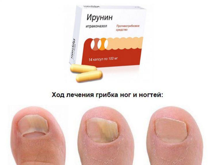 Препарат по лечению ногтевого грибка