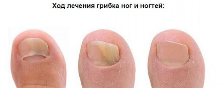 Как узнать грибок на ногтях ног