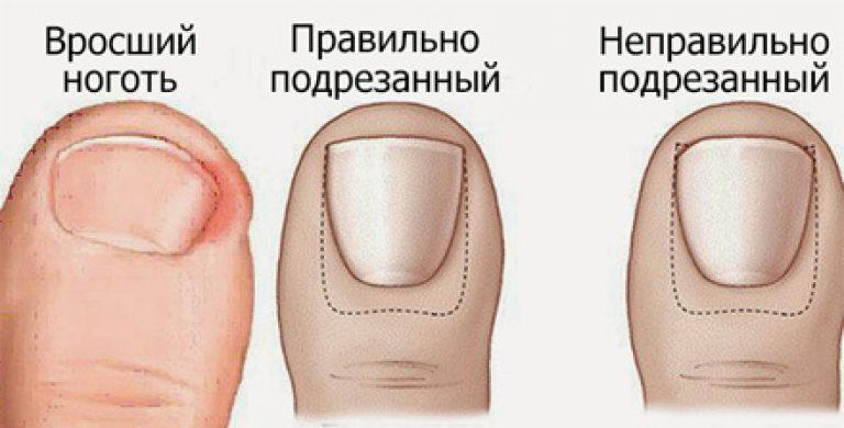 Вросший ноготь на ноге как лечить медикаментозно