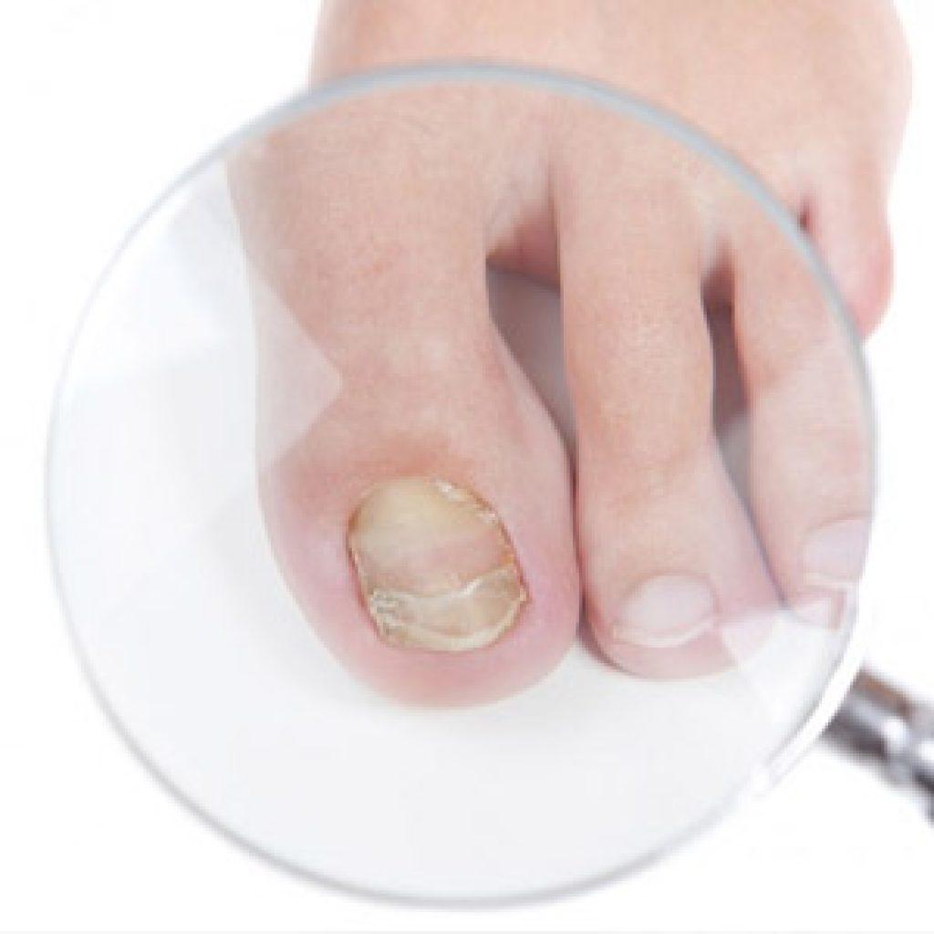 Чем лечить онихомикоз ногтей - обзор дешевых препаратов