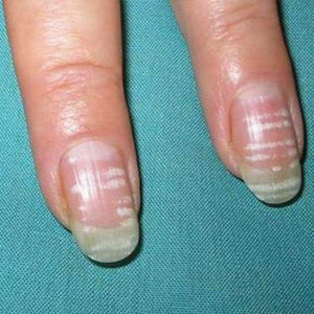 Что делать, если появились белые пятнышки на ногтях пальцев рук