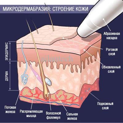 Что такое микродермабразия