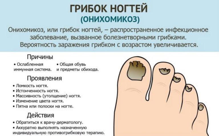 Ноготь на ноге грибок онихомикоз чем лечить