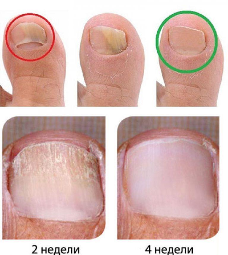 Лечение ногтевых пластин грибок ногтей