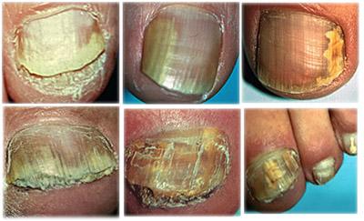 Запущенная грибковая болезнь