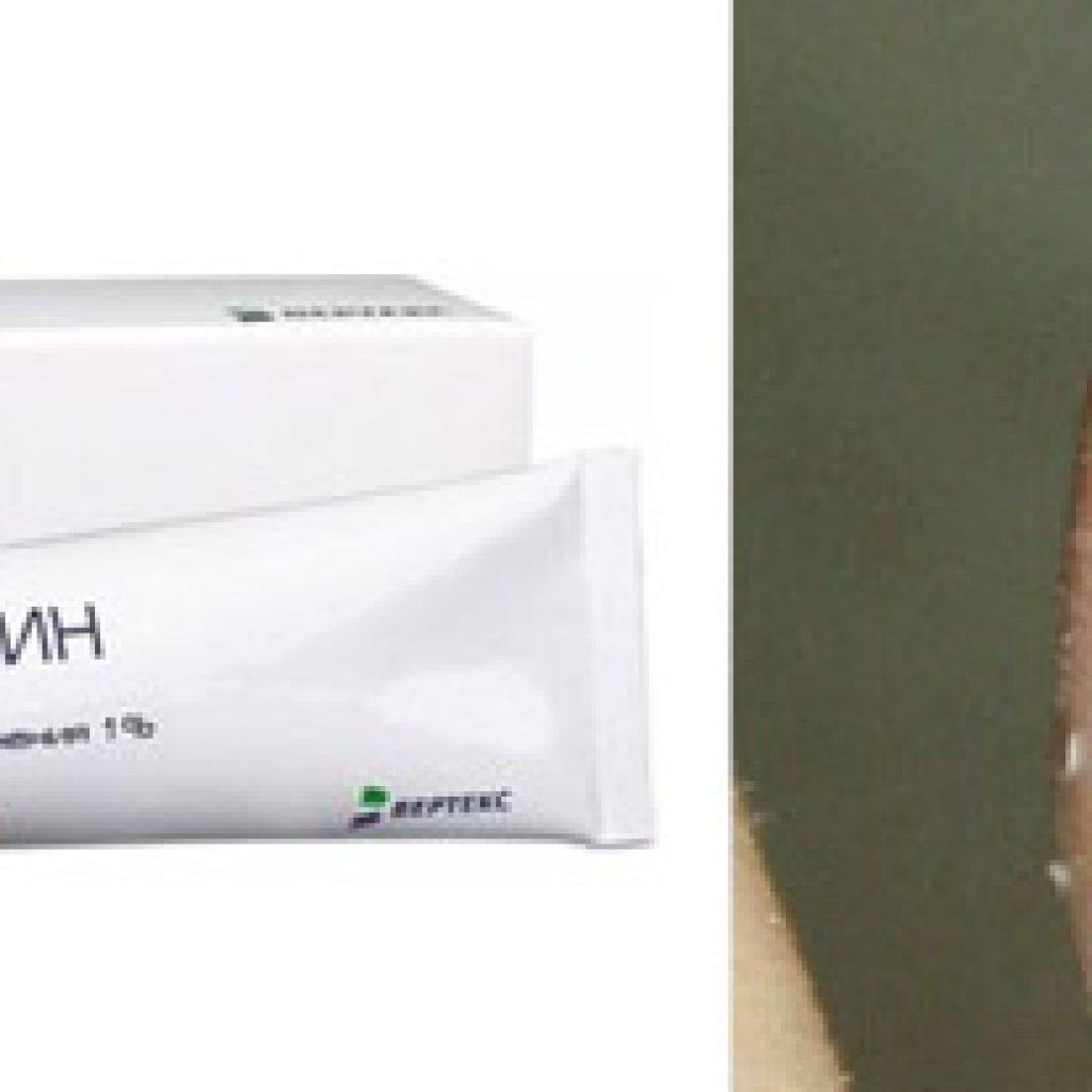 Лекарство Тербинафин от онихомикоза