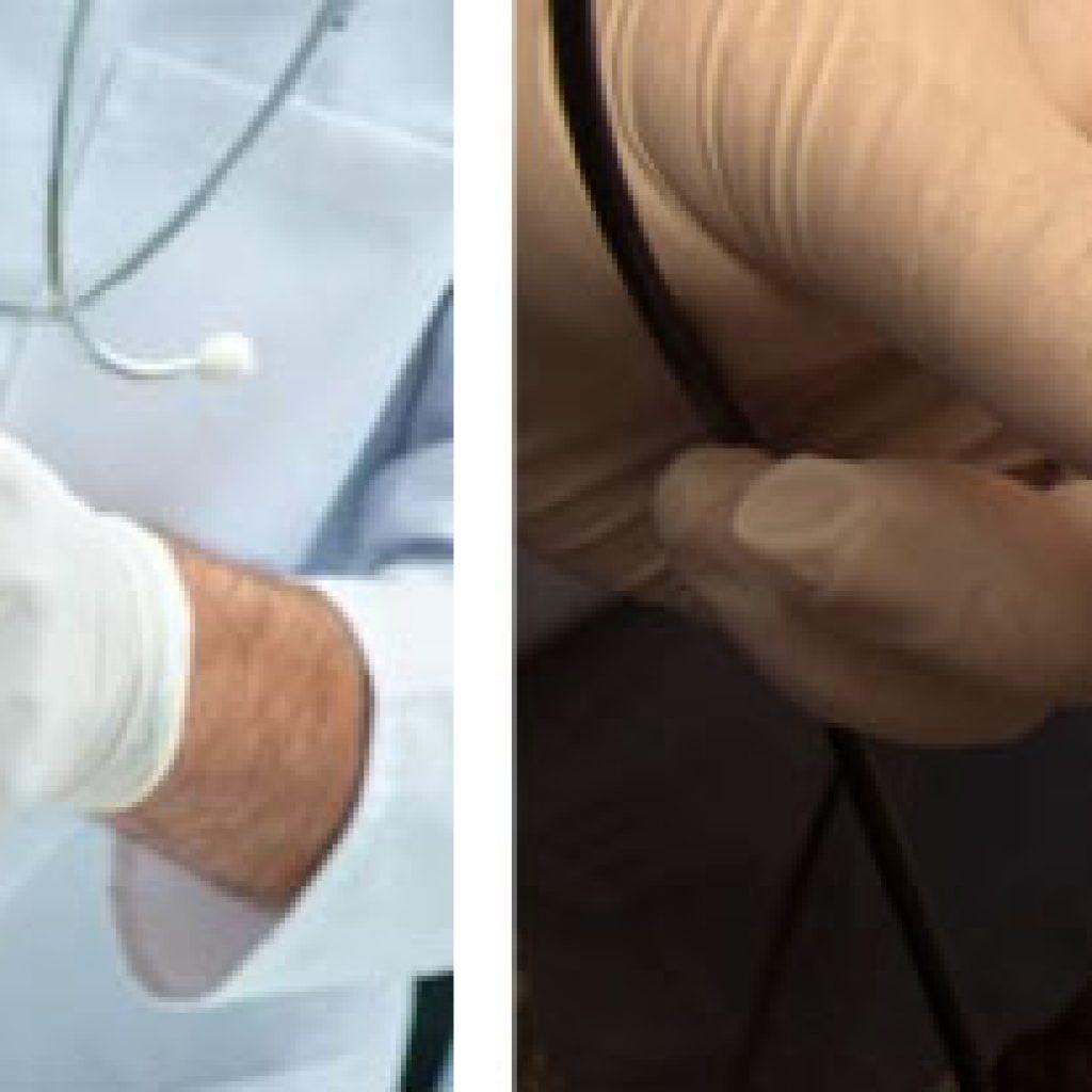 Лечение грибка лазерным лучом