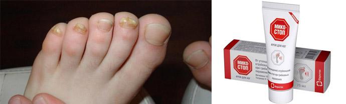 Лечение грибка ногтей недорогими эффективными препаратами