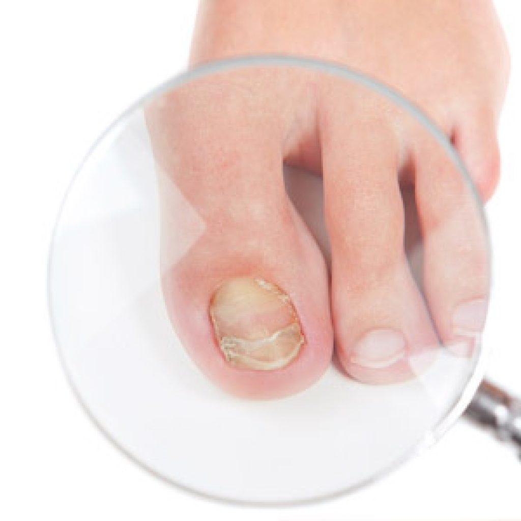 Обзор дешевых и эффективных препаратов для лечения грибка на ногтях