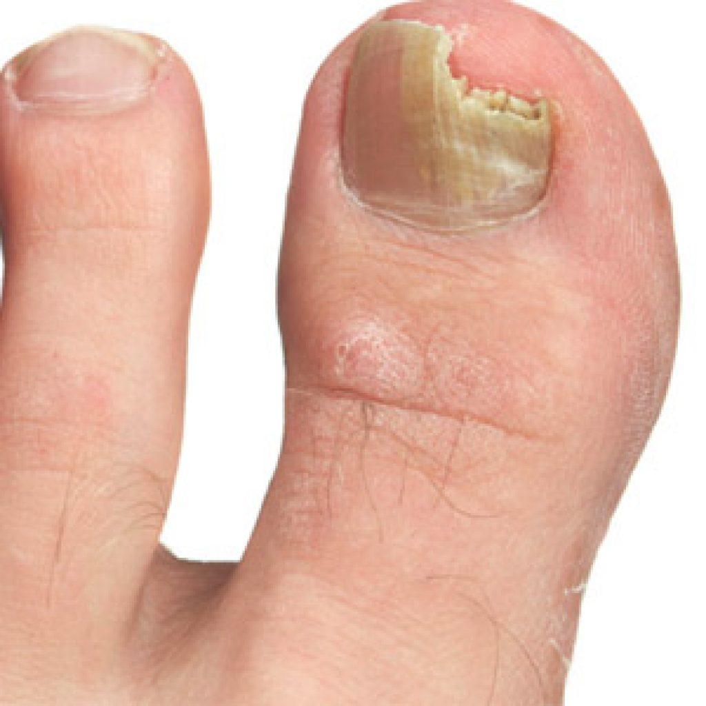 Самые лучшие средства от грибковой инфекции ногтей на ногах