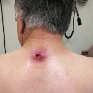Микроинсульт лечение отзывы