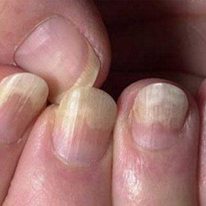 Лопух для лечения ногтей